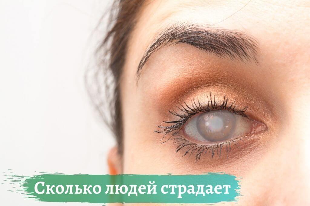 Сколько людей страдает от глаукомы