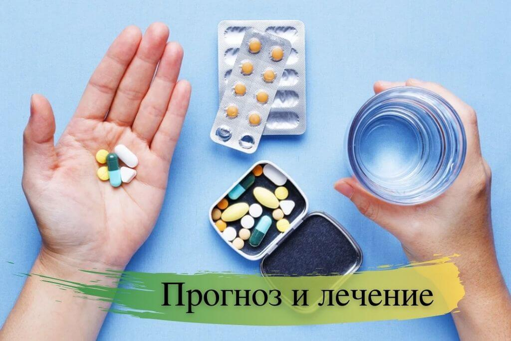 Прогноз и лечение миастении