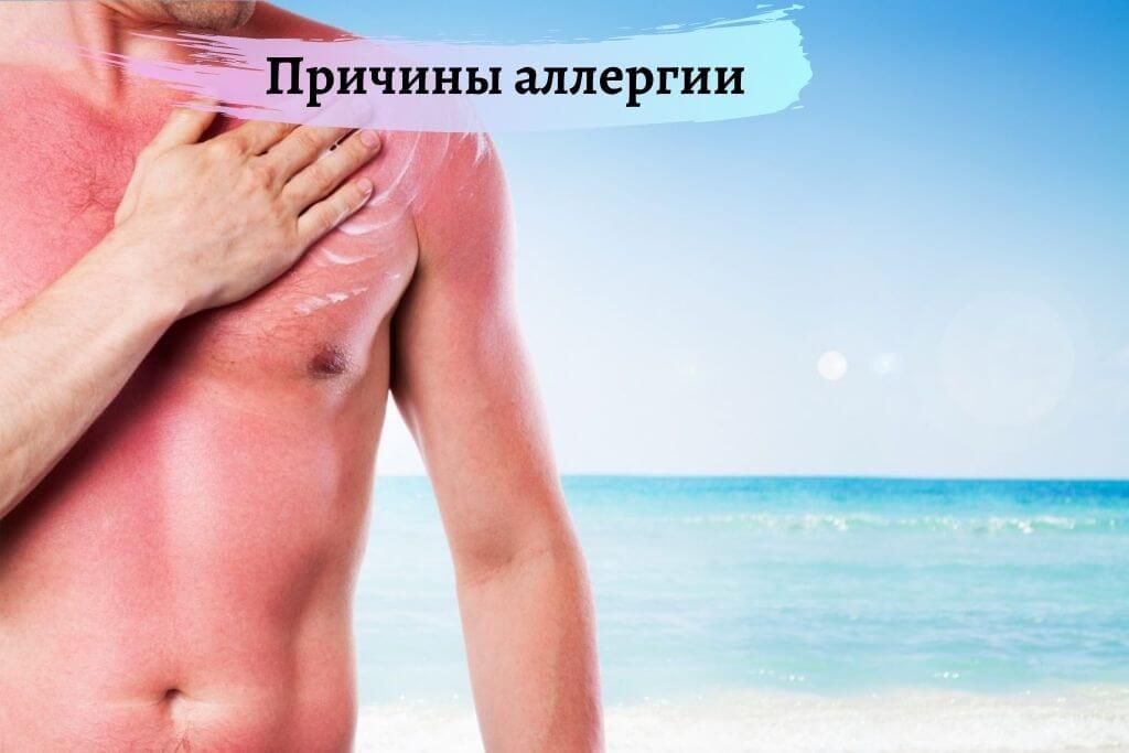 Причины аллергии на солнце