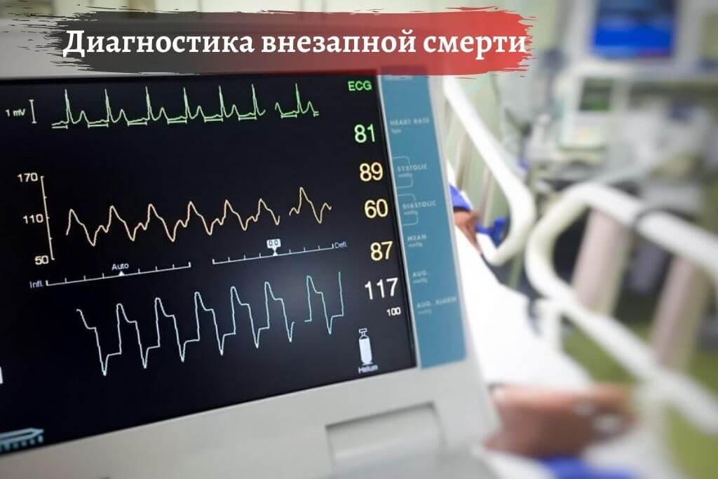 Диагностика внезапной смерти