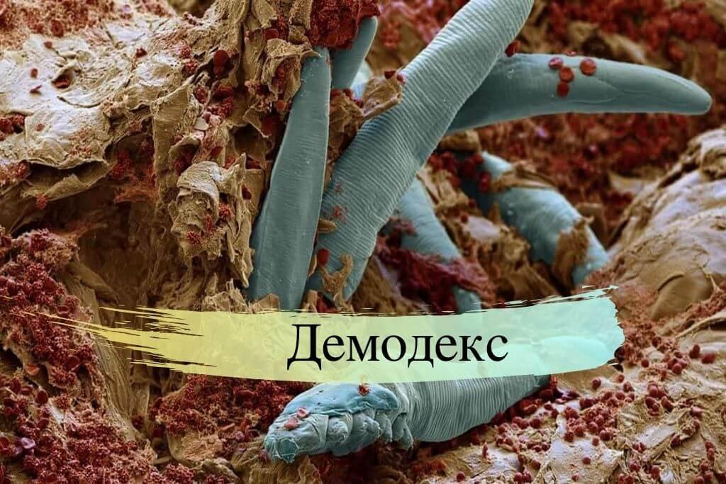 Паразиты демодекс