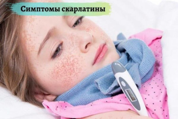 Симптомы скарлатины