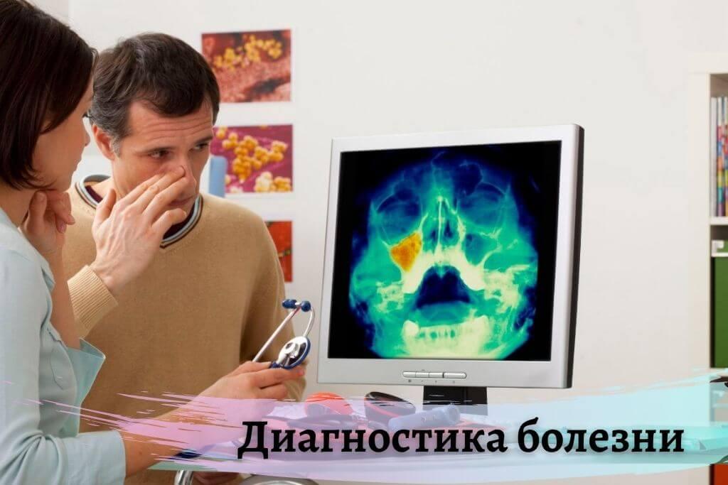 Диагностика гнойного катара