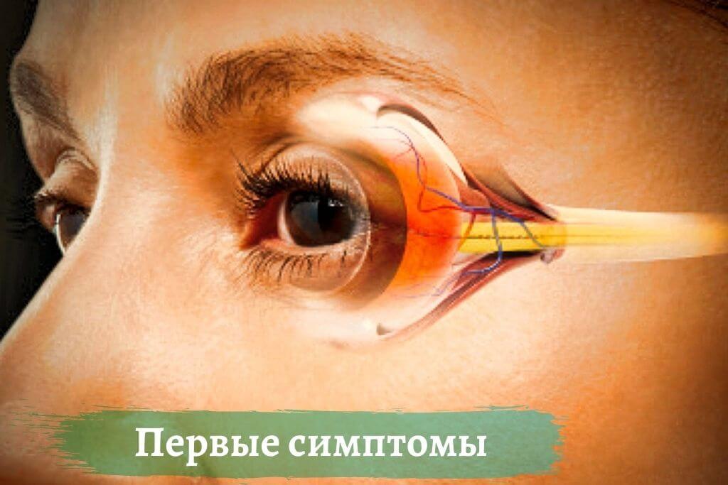 Первые признаки глаукомы