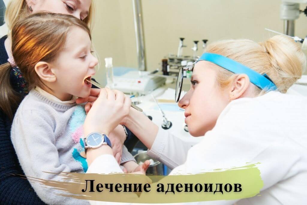 Лечение аденоидов