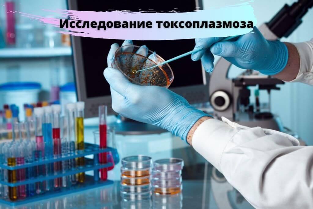 Исследование токсоплазмоза