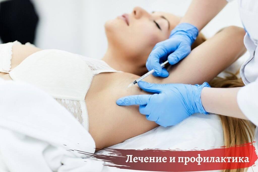 Лечение и профилактика гипергидроза