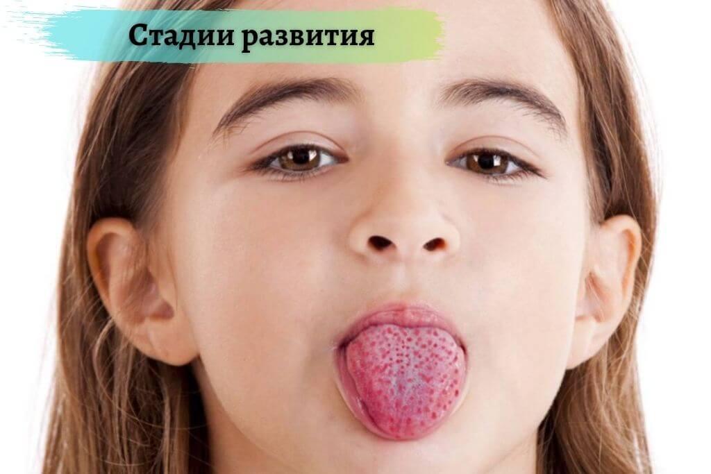 Стадии развития детской скарлатины