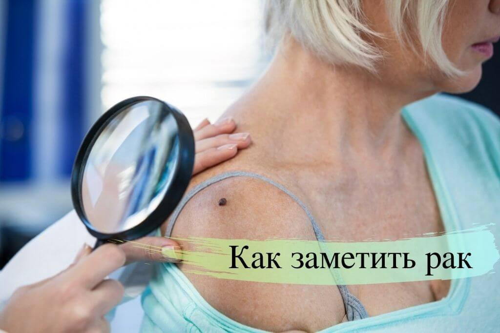 Причины рак кожи