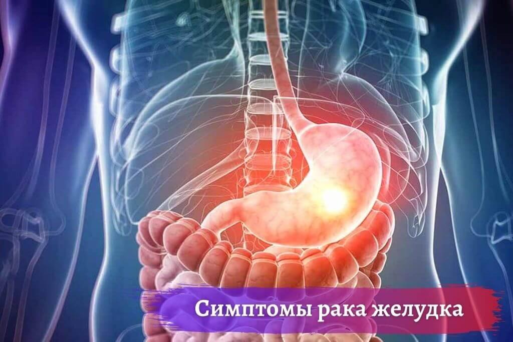 Симптомы рака желудочно-кишечного тракта