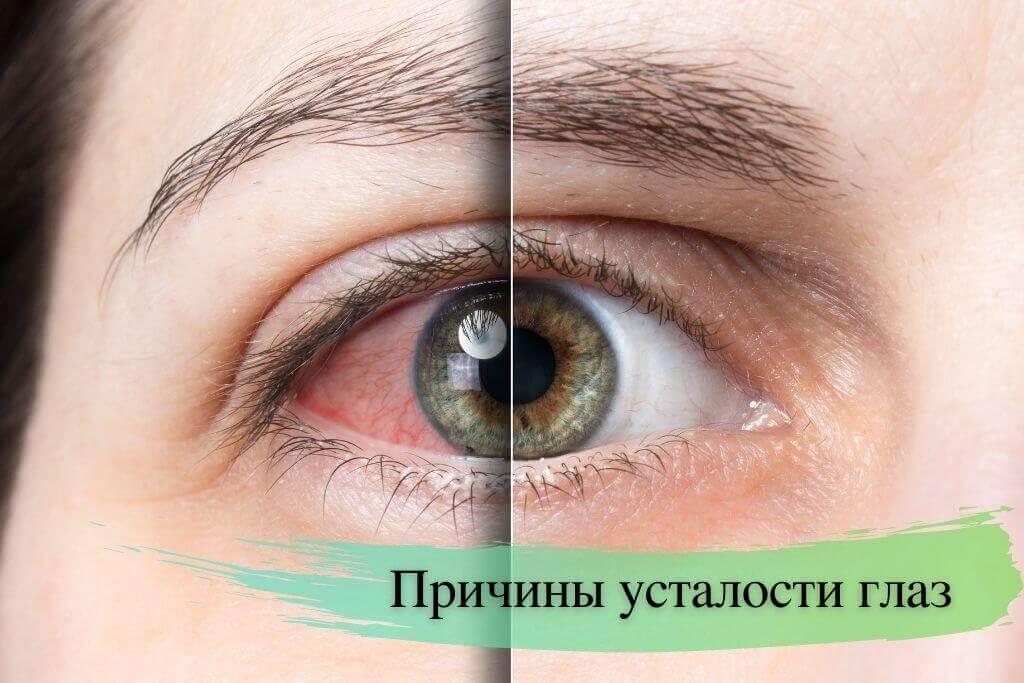 Причины усталости глаз
