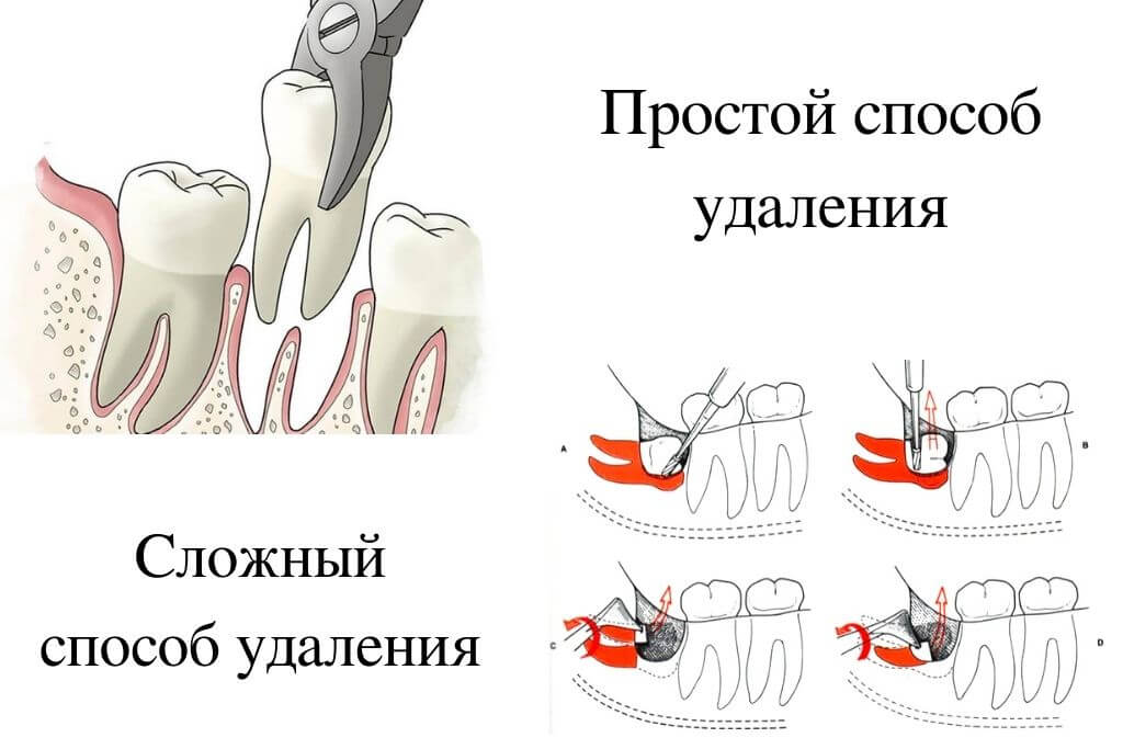 Простой и сложный метод вырывания зуба