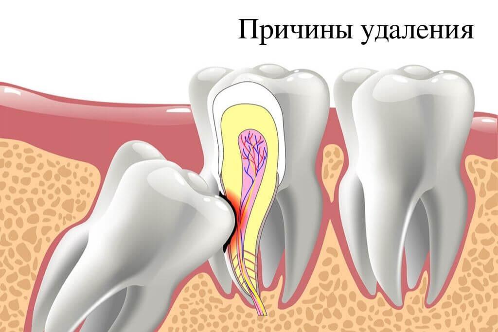 Показания к удалению зубов мудрости