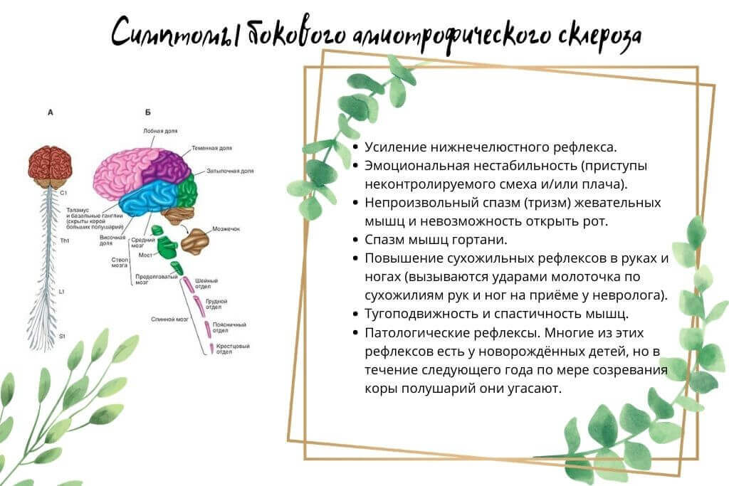 Боковой амиотрофический склероз  симптомы