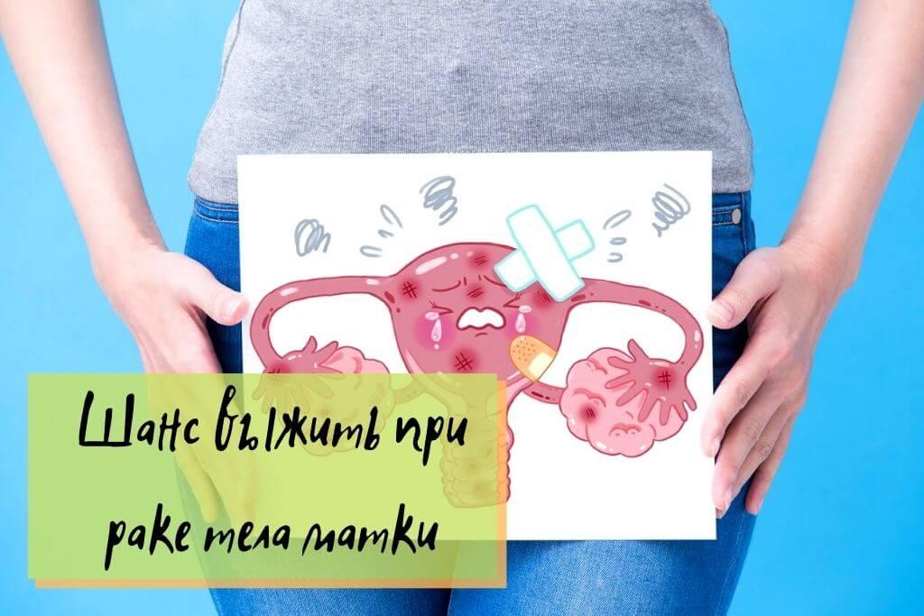 Шанс выжить при раке тела матки
