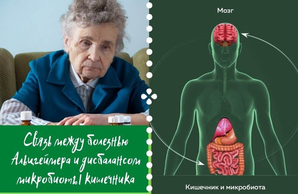 Cвязь между болезнью Альцгеймера и дисбалансом микробиоты кишечника