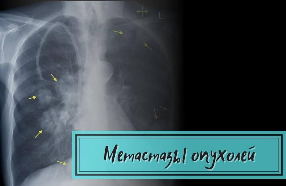 Метастазы опухоли